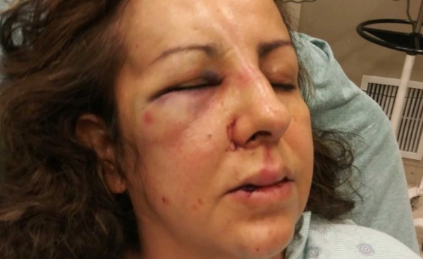 California Mom Gets Beaten By Her Daughter's Bullies